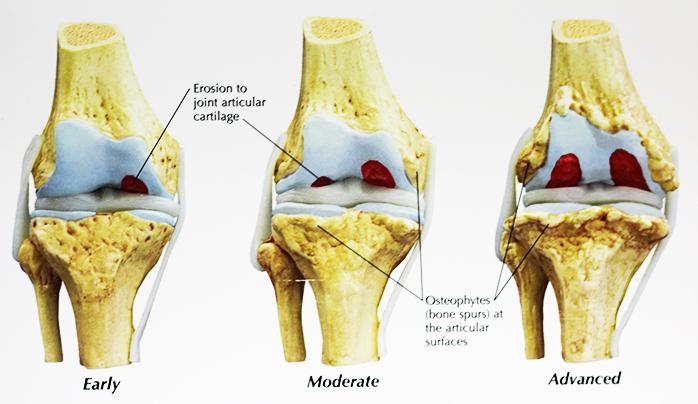 progressione artrosi