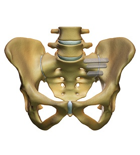 si-joint-implants